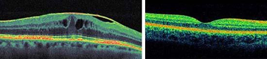 ממברנה אפירטינלית בעין OCT