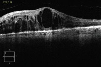 סוכרת בעיניים - בצקת מקולרית