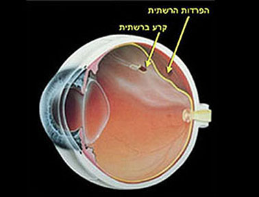 היפרדות זגוגית העין - סיבוכים