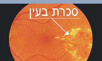 פגיעת סוכרת בעין