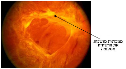 traction retinal detachment TRD