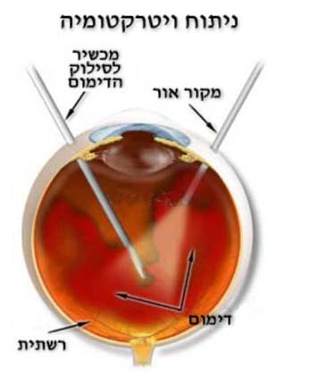ניתוח ויטרקטומיה לדימום בזגוגית